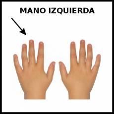 MANO IZQUIERDA - Foto